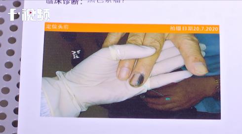 「鼻窦炎20年了会癌变吗」20年前的旧伤痕居然癌变了…这个部位受伤千万别忽视