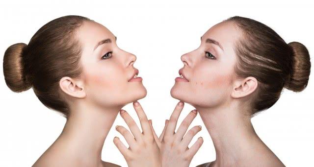 脸颊两边长痘痘是为什么 应该如何消除