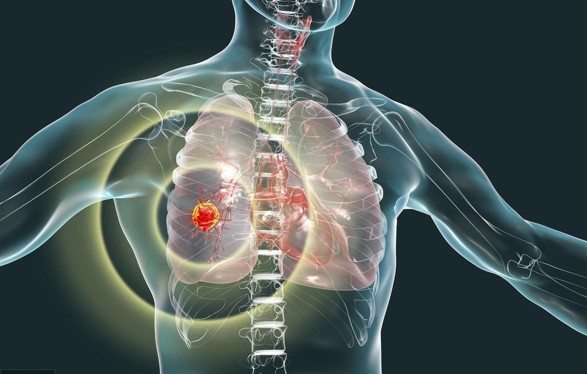 症状 肺癌
