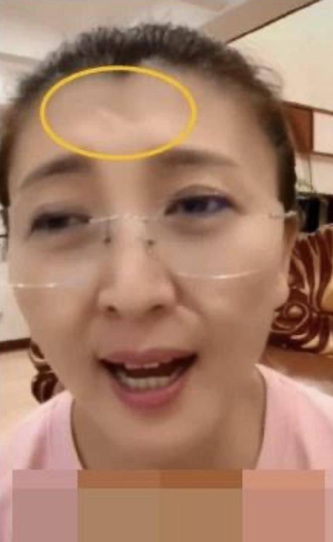 48岁闫学晶频繁直播,毫不在意额头疤痕明显,3岁小女儿罕见出镜