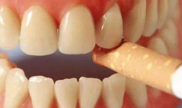 别再只用牙刷清洁牙齿了,牙膏里加点它,结石自己掉,还美白牙齿