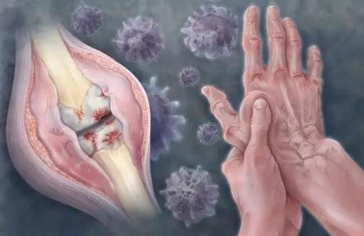 老年骨关节炎慎用抗炎药