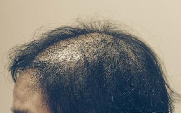 6个人就有1个脱发,医生教你3分钟了解脱发6大原因,拯救秀发