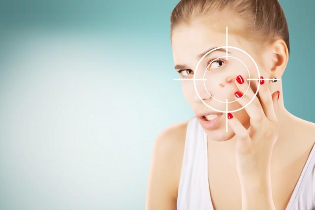 脸颊两侧长痘用什么药比较好 教你如何快速恢复健康肌肤