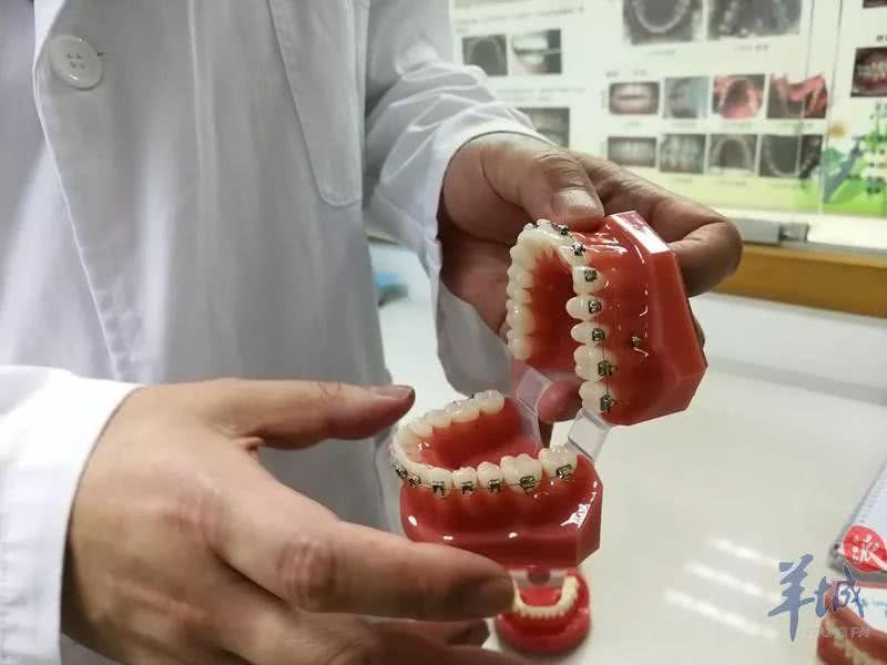 预防牙畸形,从小就得注意!