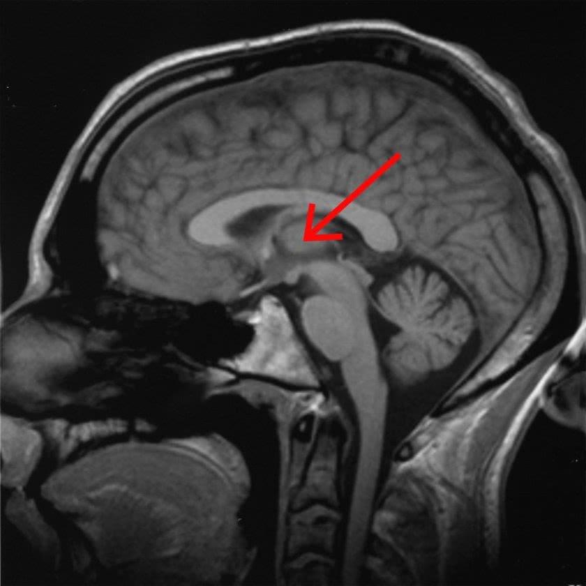 科学家在大脑中发现控制意识的开关!