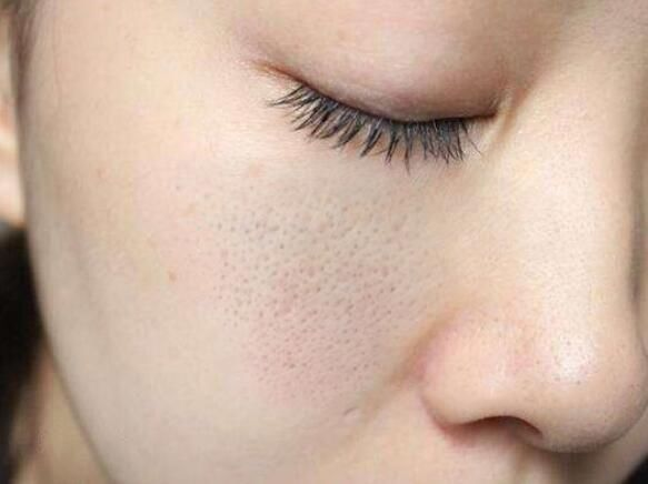 面对脸上粗大的毛孔,该如何快速收缩?医生说用它效果更好!图片