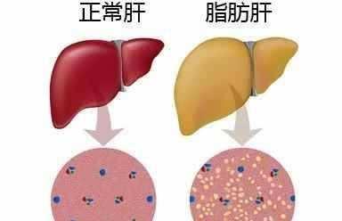 得了脂肪肝,如何调理?每天水里泡一物,养护肝脏