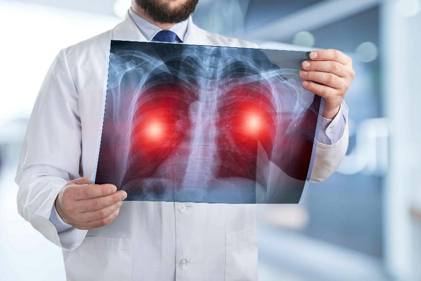 面对肺癌,如何应对?中医药在治疗中有什么样的作用?