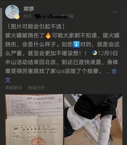 <b>明星做理疗、美容也会出意外:邓莎齐秦被烧伤,刘涛受尽折磨</b>
