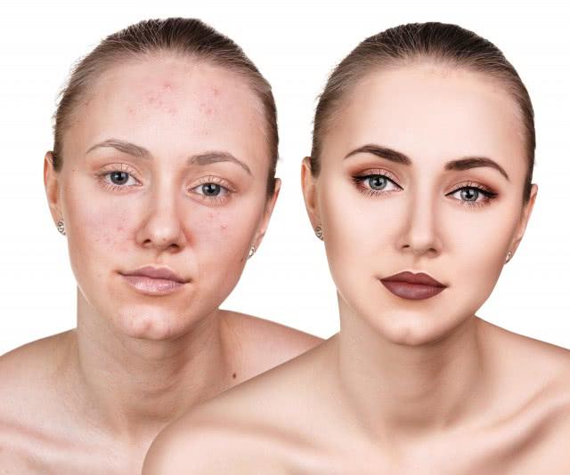 红痘印多久会消失 有效护肤才能恢复肌肤健康