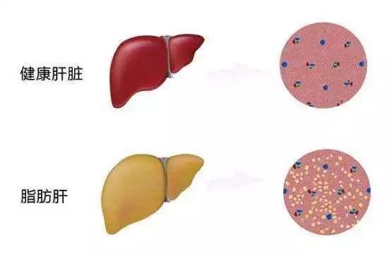 <b>得了脂肪肝,别小看它,一个方子照着吃,或能根治</b>
