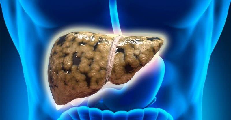 脂肪肝患者如何自疗自养