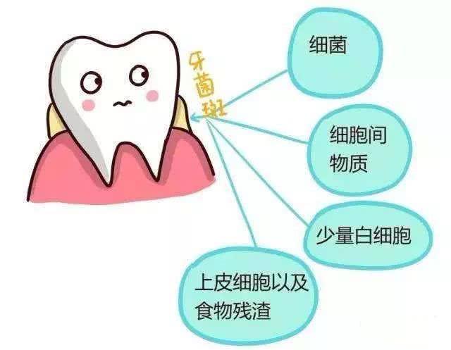 牙菌斑怎么去掉