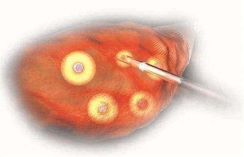 <b>卵泡黄素化可以做试管婴儿吗</b>