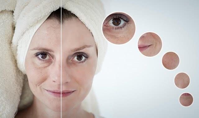 左脸长痘的原因是什么?简单四招护肤措施让你变回水嫩皮肤