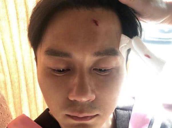 综艺节目常有意外,王宝强骨折李晨缝22针,他却呼吸道堵塞离世
