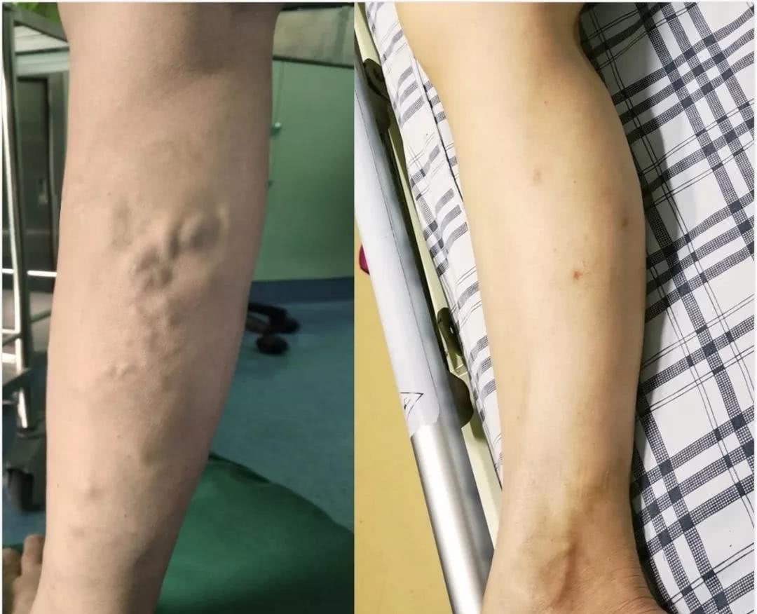 """28岁女主播""""蚯蚓""""上腿10年不敢穿裙子 医生:久坐久站要小心"""