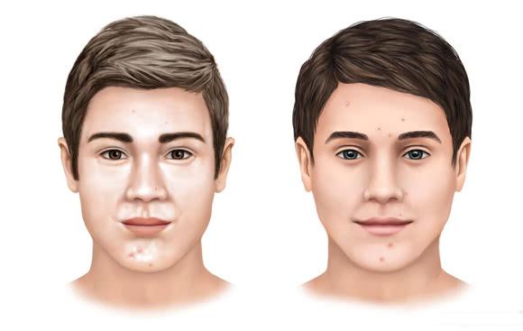 为什么你的皮肤比其他人更容易出油?