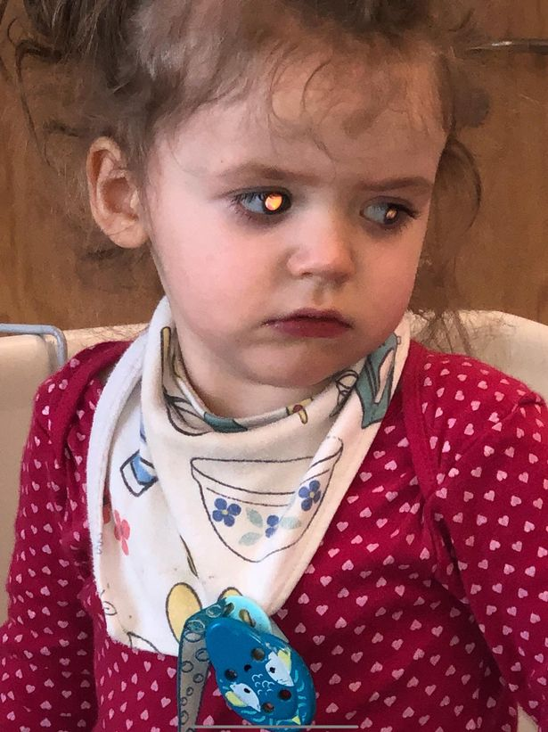 母亲发现2岁女儿眼睛异常结果查出脑瘤,医生称再晚两周就没救了