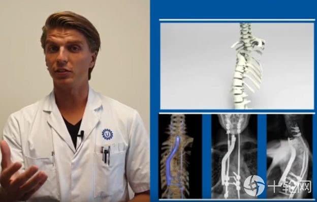 荷兰医院植入3D打印钛合金,帮助脊椎罕病患者重新行走