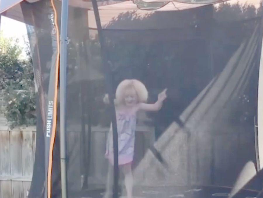 「怎样搜同款」爱因斯坦同款!澳洲10岁女孩患难梳头发综合征
