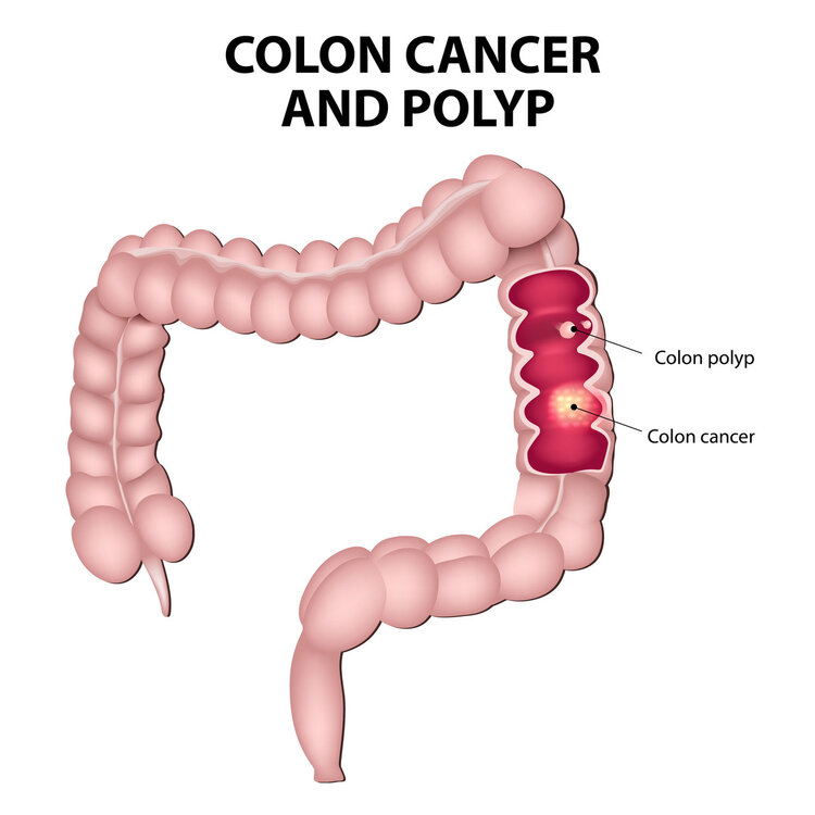Regarding Bowel Cancer As Hemorrhoids The 22 Year Old College Student Missed The Chance To Treat It This Tragedy Could Have Been Avoided Daydaynews
